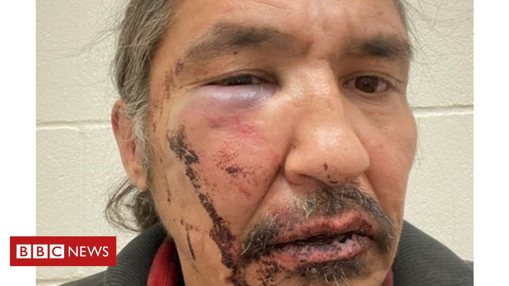 Photo of Canada indigenous chief Allan Adam battered during arrest