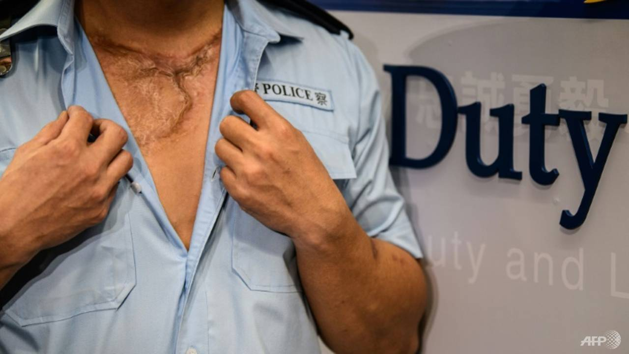 Photo of No regrets: Wounded Hong Kong police vow to keep enforcing law