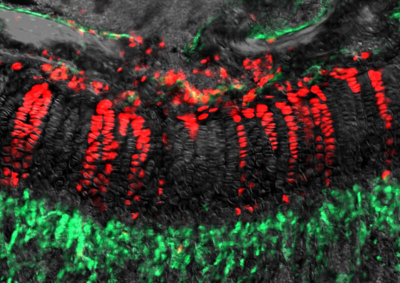 """Photo of Neurologists warn of the danger of """"stem cell tourism"""""""