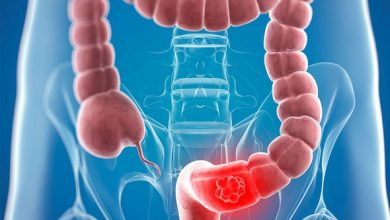Photo of Bowel cancer symptoms: A 'jellylike substance' in your stools could be a warning sign